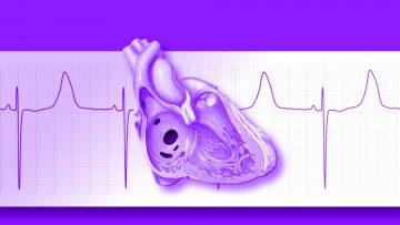 La UIC en el Servicio de Cardiología (CRD) del Grupo San Gerónimo (GSG).