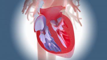 Insuficiencia cardíaca congestiva.